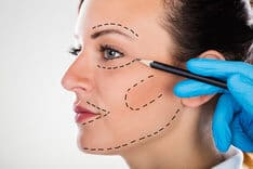Cosmetic Surgery - Face Lift