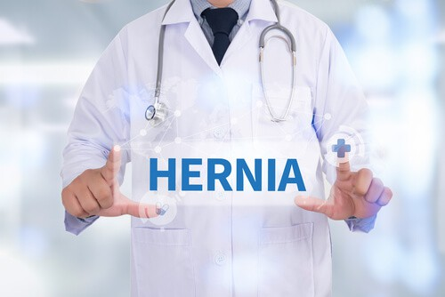 Hiatal Hernia After Gastric Sleeve