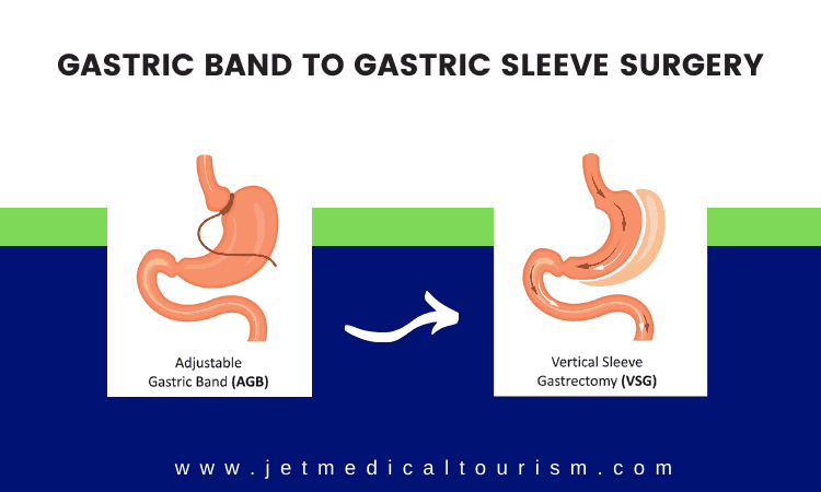 Lap band to gastric sleeve Tijuana