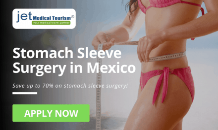 Stomach Sleeve Surgery in Mexico: Gastric Sleeve Mexico