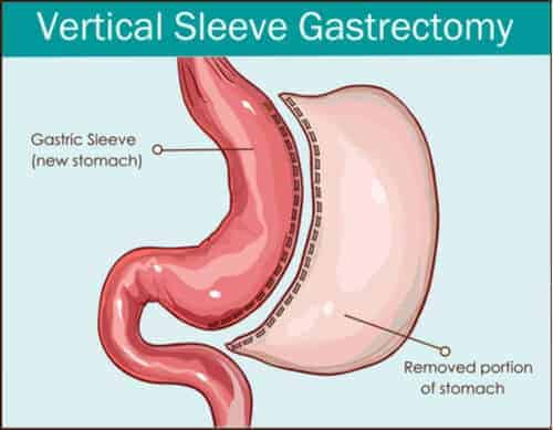 How Does Gastric Sleeve Work