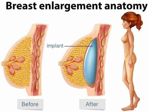 Breast Implant Enlargement in Before and After