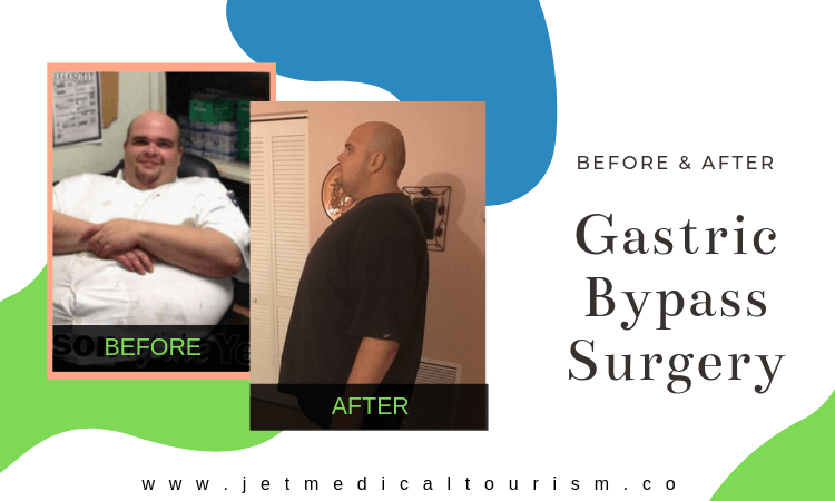 Gastric Bypass Surgery Before After