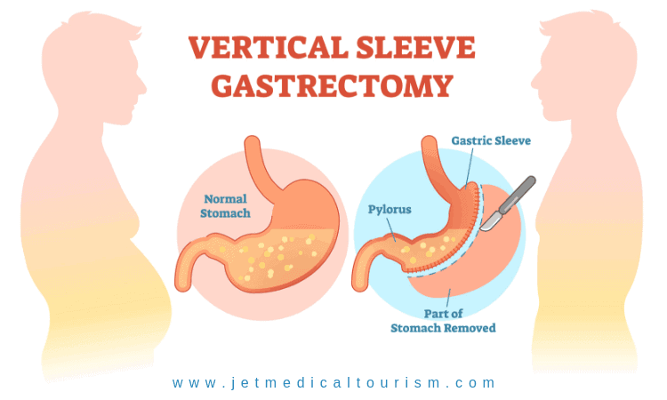How vertical sleeve gastrectomy works