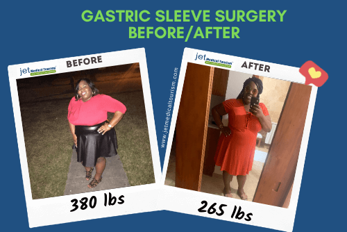 Dalatte gastric sleeve before after