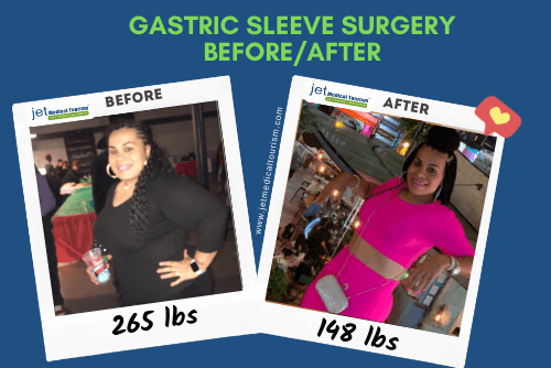 Christina gastric sleeve before after