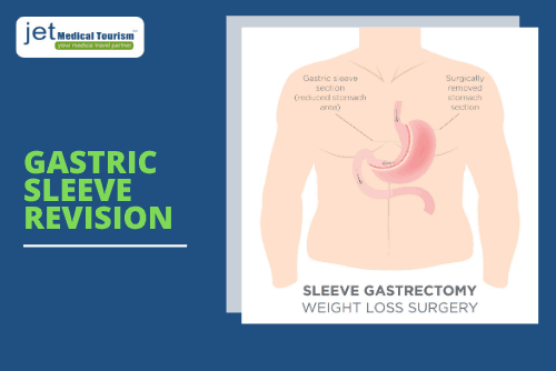 Gastric Sleeve Revision