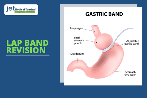 Gastric Lap Band Revision