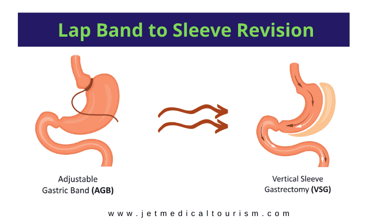 Lap Band to Gastric Sleeve