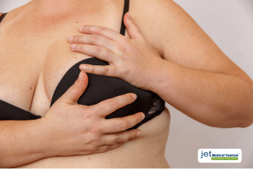Weight Loss Surgery and Breast Cancer