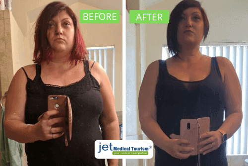 Gastric Sleeve Mexico Before & After