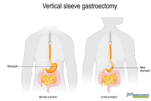 Mexico Gastric Sleeve Reviews