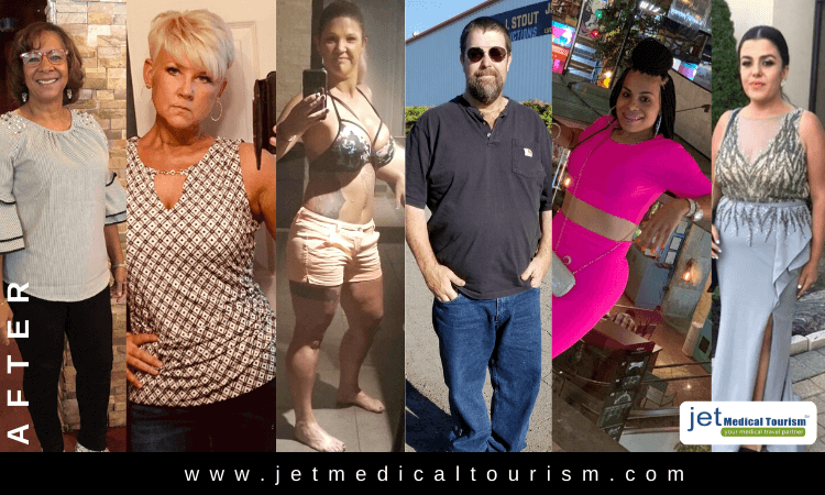 Gastric Sleeve After Photos