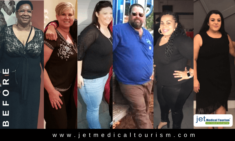 Gastric Sleeve Before Photos