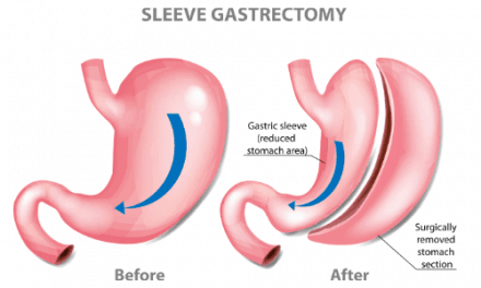 Why Gastric Sleeve Surgery is The Best Weight Loss Surgery Procedure?
