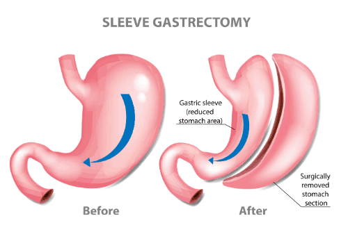 does insurance cover gastric sleeve