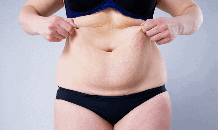 Gastric bypass before and after pictures skin