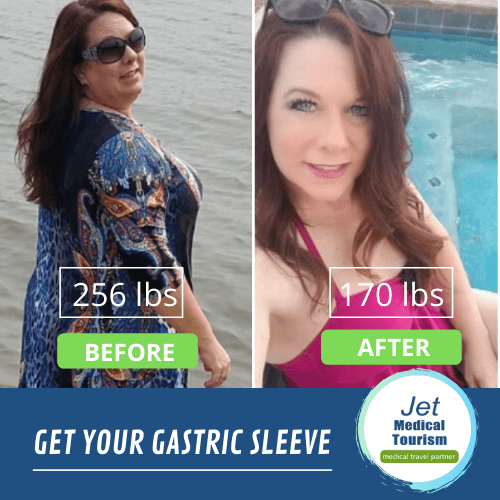 Gastric Sleeve Weight Loss Stories can inspire people to lose weight and get healthy.