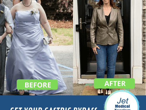 Gastric Bypass Before and After Pic