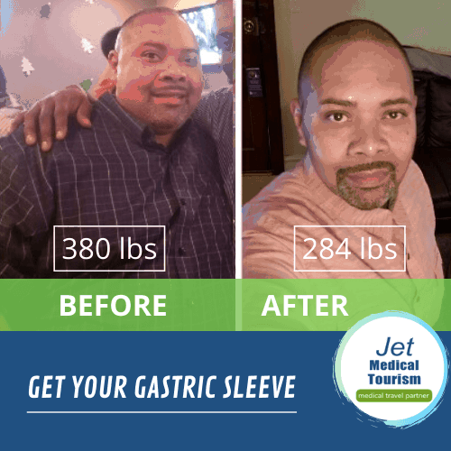 Gastric sleeve story of Alex who lost 96 pounds in 11 months