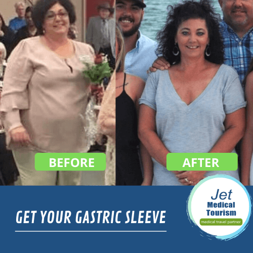 Rhonda shares one of many gastric sleeve success stories.