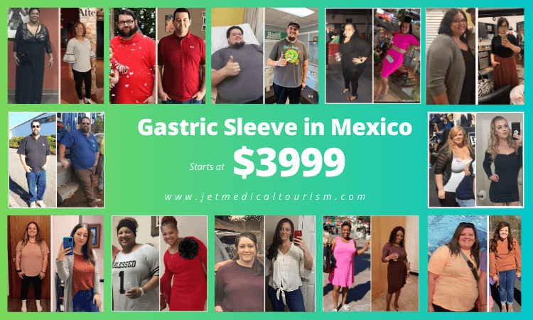 Gastric Sleeve Surgery in Mexico - Jet Medical Tourism®