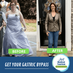 Jodi's Before and After Gastric Bypass Picture