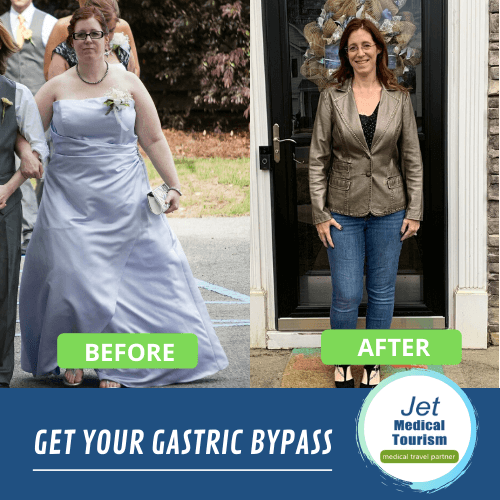 Gastric bypass before and after pictures
