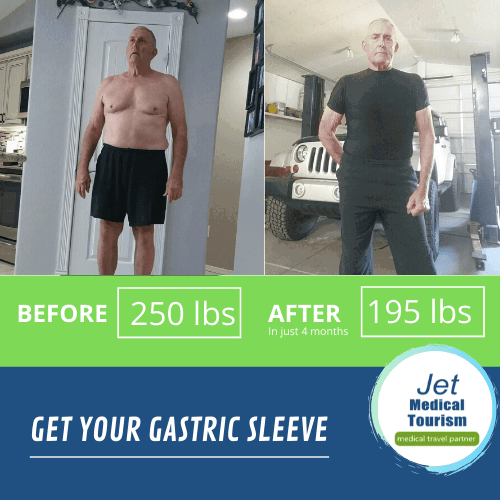 Male Gastric Sleeve Before and After Stories