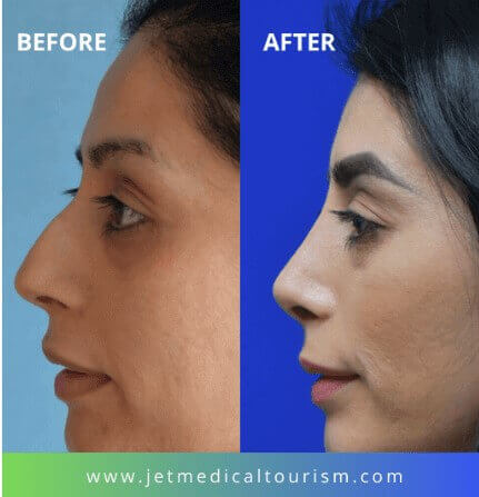 Mexico Nose Job Before and After