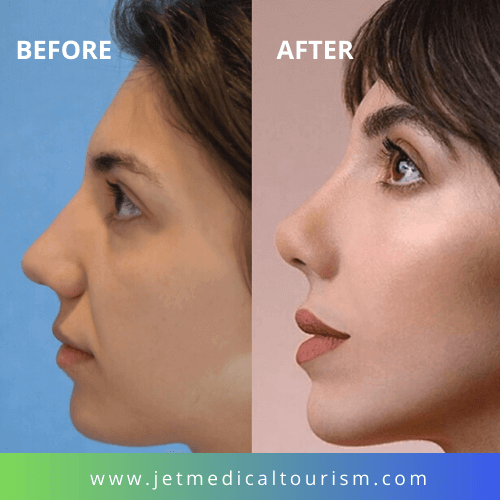 Mexico Rhinoplasty Before and After