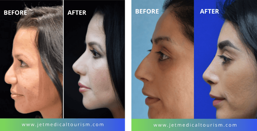 Nose Job in Mexico Before and After