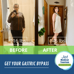 Zulema's Before and After Gastric Bypass Picture