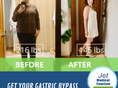 Gastric Bypass Before and After Pictures: Best Photos (2020)
