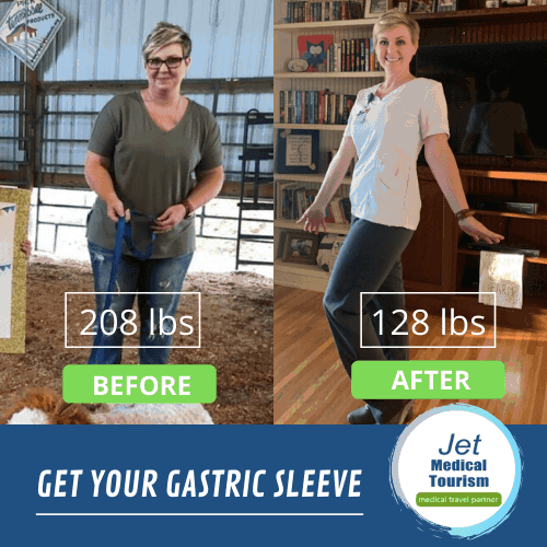 Gastric Sleeve Mexico Before and After Picture