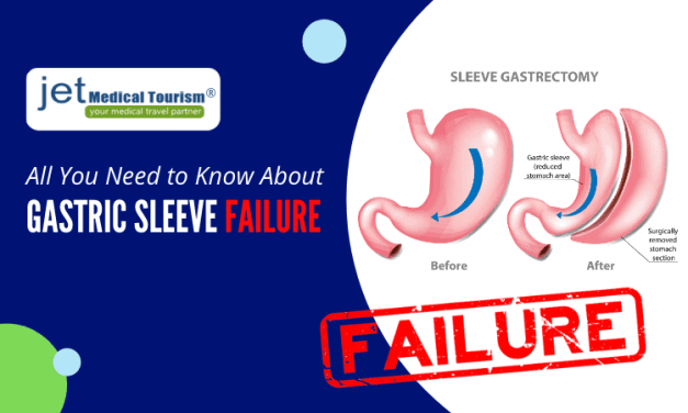 Gastric Sleeve Failure: Can a gastric sleeve be redone?