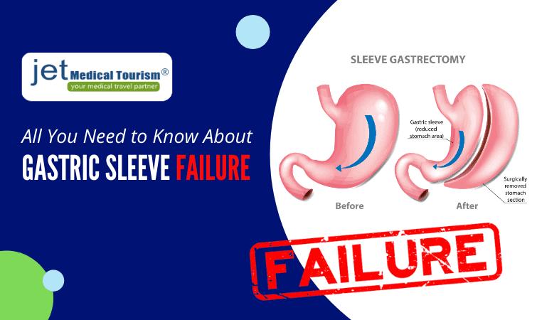 Gastric Sleeve Failure