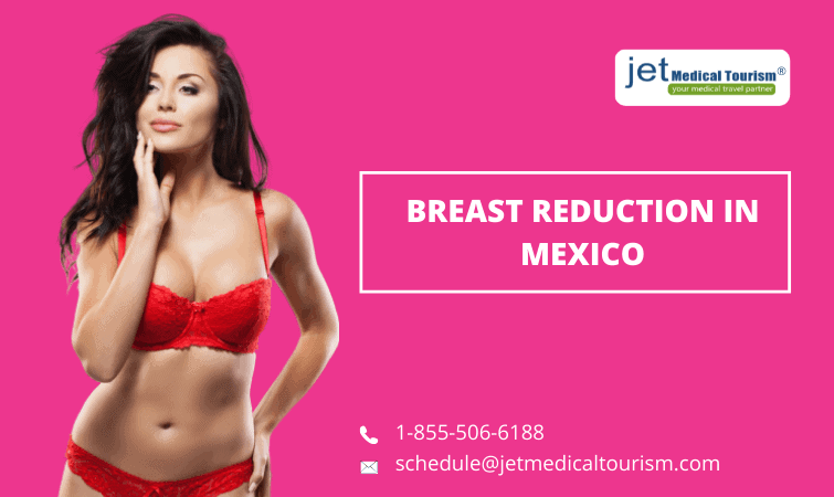 Breast Reduction in Mexico