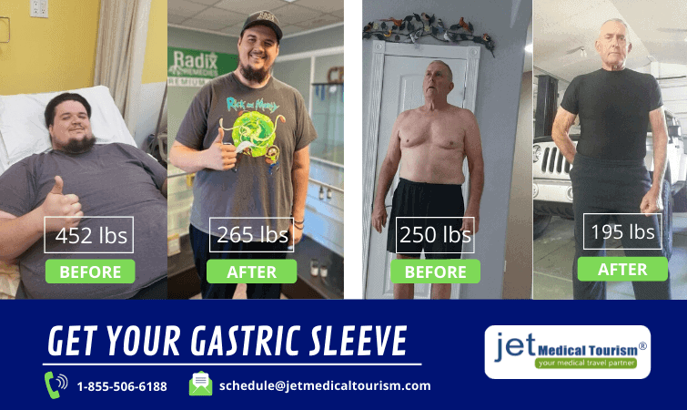 Gastric Sleeve Before and After Male