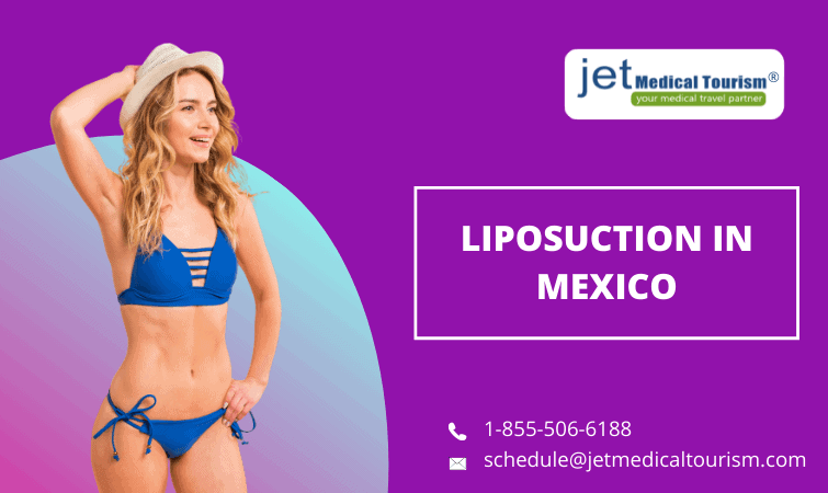 Liposuction in Mexico