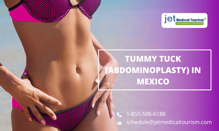 Tummy Tuck (Abdominoplasty) in Mexico