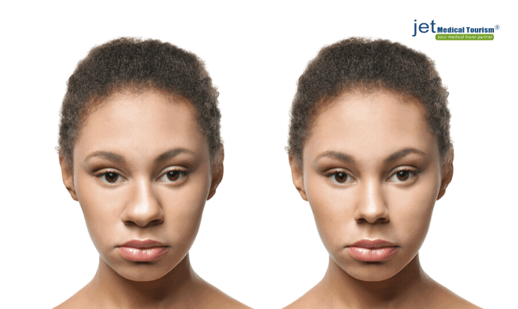 African American wide nose rhinoplasty