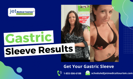 Gastric Sleeve Results: Expected Weight Loss After VSG Surgery