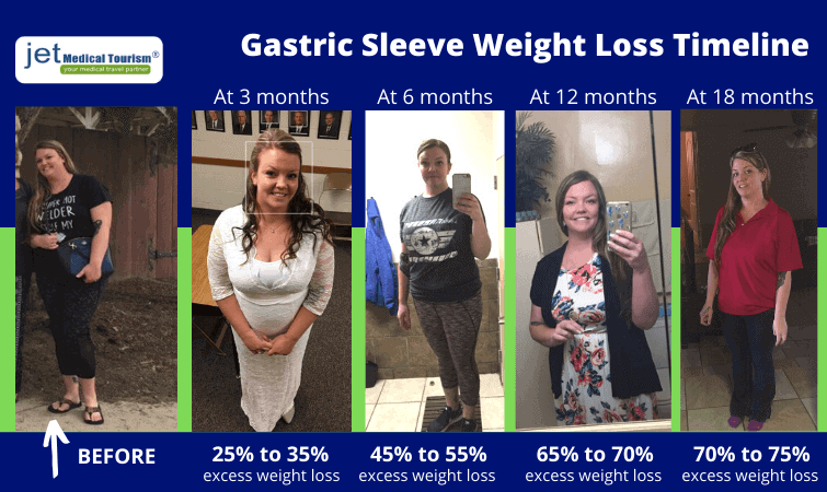 gastric sleeve weight loss timeline