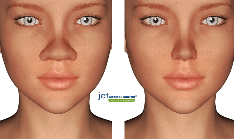 Rhinoplasty for Wide Nose
