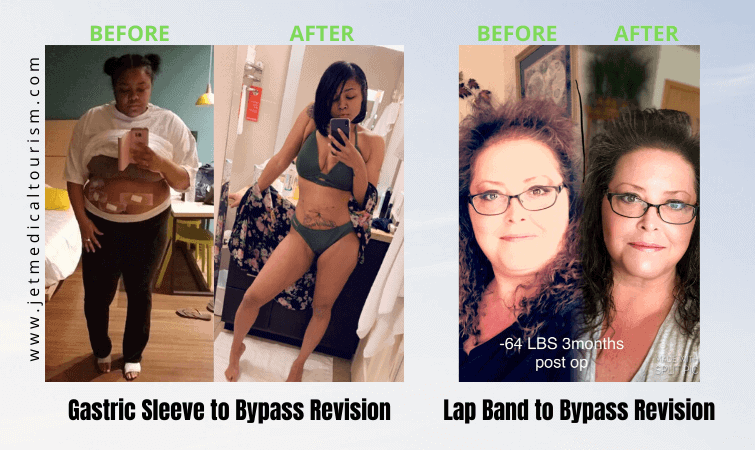 Gastric Bypass Revision Before and After
