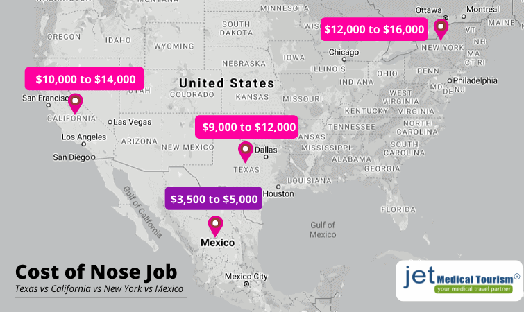 Nose Job Cost in USA vs Mexico