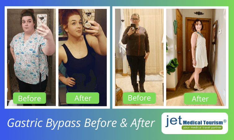 Gastric bypass before and before pictures