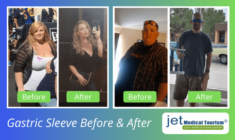 Gastric sleeve before and after pictures