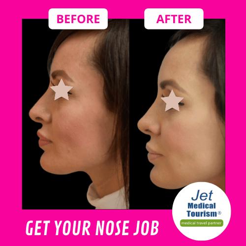 Rhinoplasty Nose Job Job